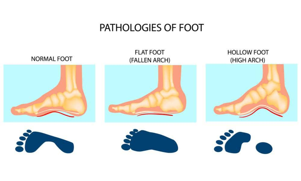 Getting the Right Fit Based on Your Foot Type